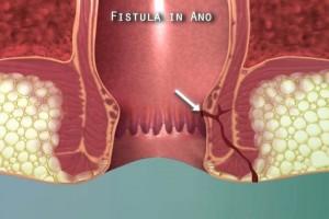 Obat Penyakit Fistula Ani